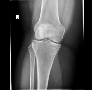Early signs of arthritis in the knee